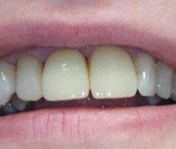 2 керамических винира на передние зубы