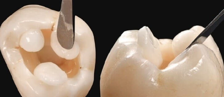 порции материала распределяются от периферии к центральной части