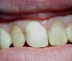 пресскерамика на передние зубы