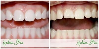 """эстетическая реставрация зубов в стоматологии """"Зубная Фея"""""""