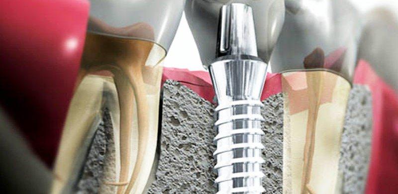 implantaziya
