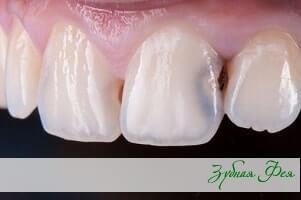 """лечение зубов в стоматологии """"Зубная Фея"""""""
