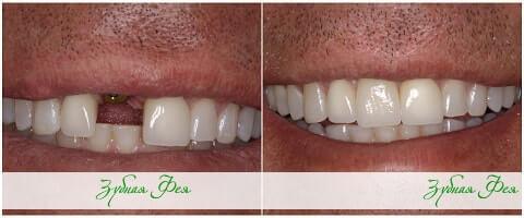 """одномоментная имплантация в стоматологии """"Зубная Фея"""""""