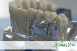 """протезирование зубов в стоматологической клинике """"Зубная Фея"""""""