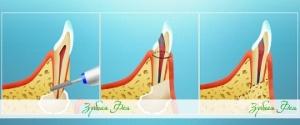 резекция верхушки корня зуба в стоматологии Зубная Фея