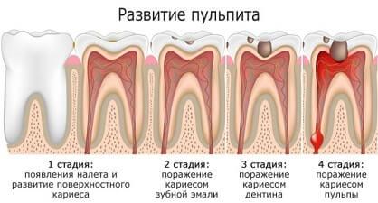 стадии развития пульпита