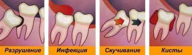 удаление зуба мудрости (восьмерки)