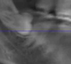 зуб мудрости в канале нижней челюсти