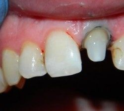Bezmetallovaja koronka na perednij zub (1)