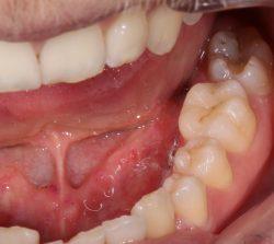 Изображение зубов 1