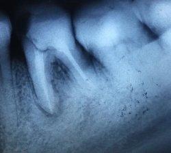 Лечение кист и гранулем