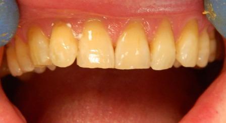Все зубы белые