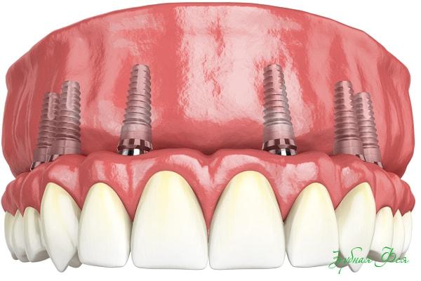 имплантация All-on-6 при полном отсутствии зубов