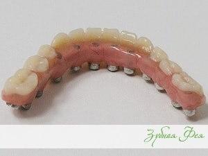 """базальная имплантация в стоматологии """"Зубная Фея"""""""