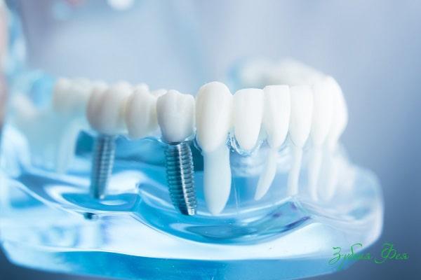 бренды зубные импланты