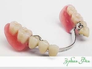"""бюгельные протезы в стоматологии """"Зубная Фея"""""""