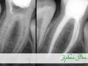 """чистка каналов зуба в стоматологии """"Зубная Фея"""""""