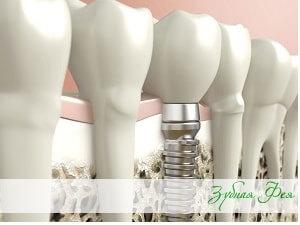 """дентальная имплантация в """"Зубной Фее"""""""