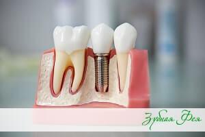 """двухэтапная имплантация в стоматологии """"Зубная Фея"""""""