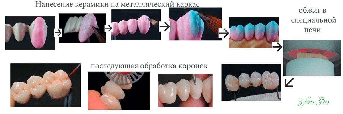 этапы изготовления металлокерамических коронок