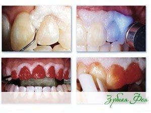 этапы обследования зубов