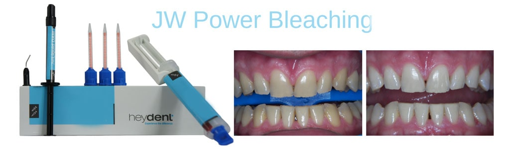 Heydent JW Power Bleaching Gel