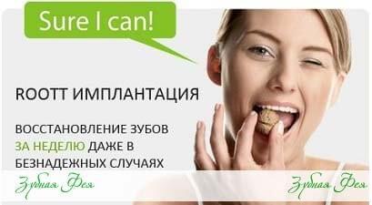 """имплантация Roott в стоматологии """"Зубная Фея"""""""