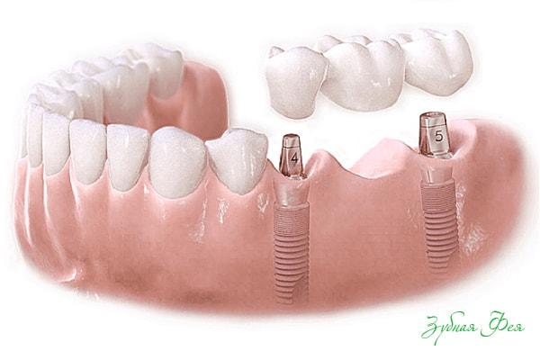 имплантация зубов диабет