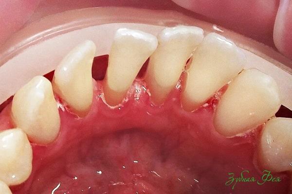 изображение пародонтоза зубов