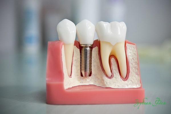 Какую имплантацию зубов выбрать