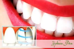 """реставрация зубов компонирами в стоматологии """"Зубная Фея"""""""