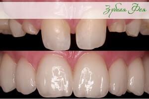 """внешний вид коронок из диоксида циркония в стоматологии """"Зубная Фея"""""""