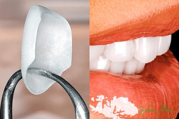 красивые, ровные и белые зубы, люминиры