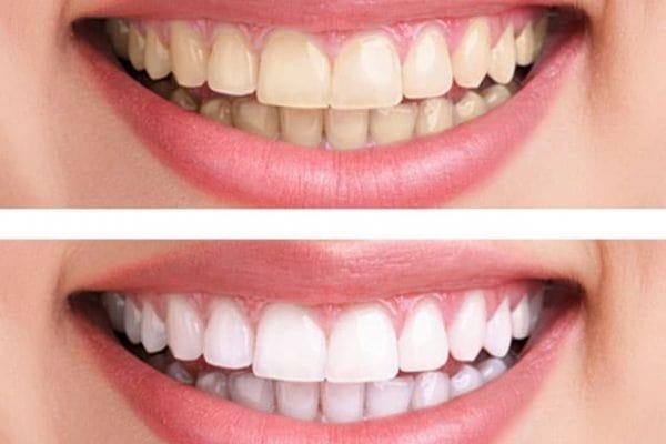 лазерное отбеливание зубов системой Heydent
