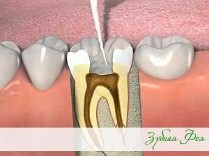"""лечение каналов зуба в стоматологии """"Зубная Фея"""""""