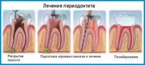 """лечение периодонтита в стоматологии """"Зубная Фея"""""""