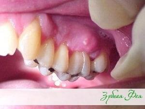 """лечение периостита в стоматологии """"Зубная Фея"""""""