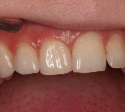 Перед препарированием зубов