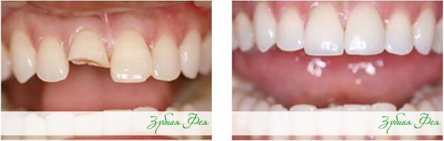"""наращивание зубов в стоматологии """"Зубная Фея"""""""