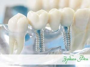 """несъемное протезирование зубов в стоматологии """"Зубная Фея"""""""
