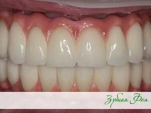 """несъемные протезы в стоматологии """"Зубная Фея"""""""