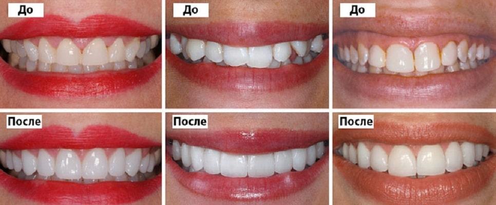 примеры голливудской улыбки