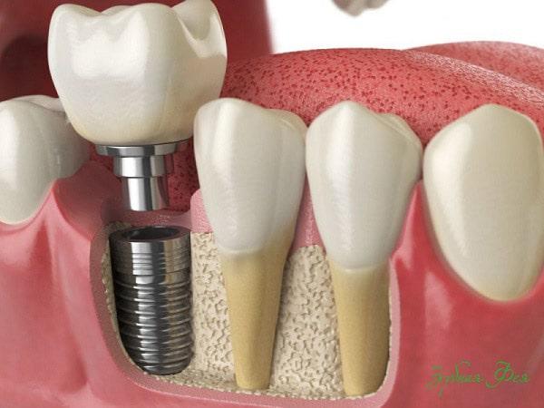 протезирование на имплантах или на своих зубах