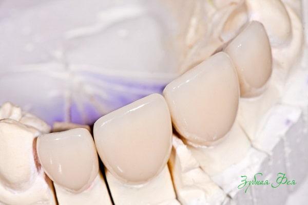 протезирование зубов безметалловой керамикой