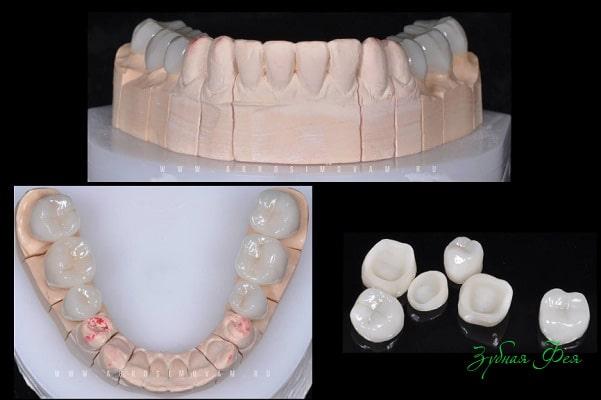 протезы на жевательные зубы