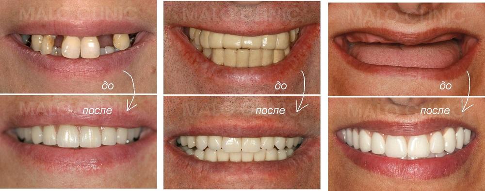 фото до и после имплантации