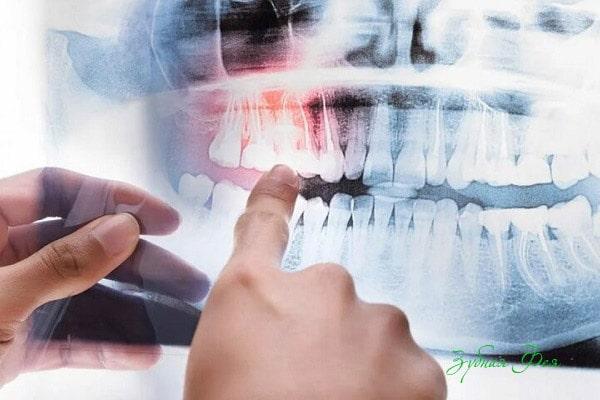 рентгенологическое обследование перед имплантацией