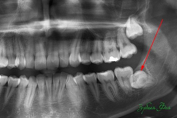 Ретинированный зуб мудрости на рентгене