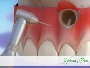 """резекция верхушки зуба в стоматологии """"Зубная Фея"""""""