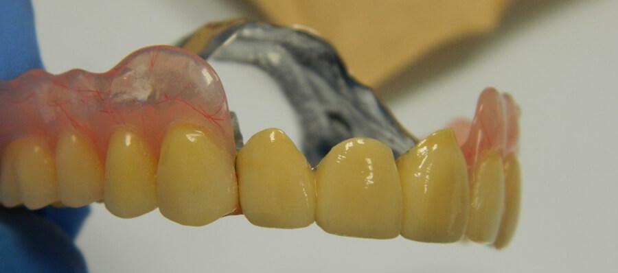 semnij protez na attachmenach (1)